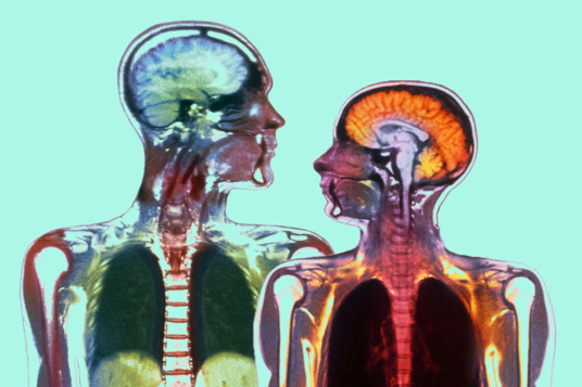 Women's brain becomes old slower than that of men